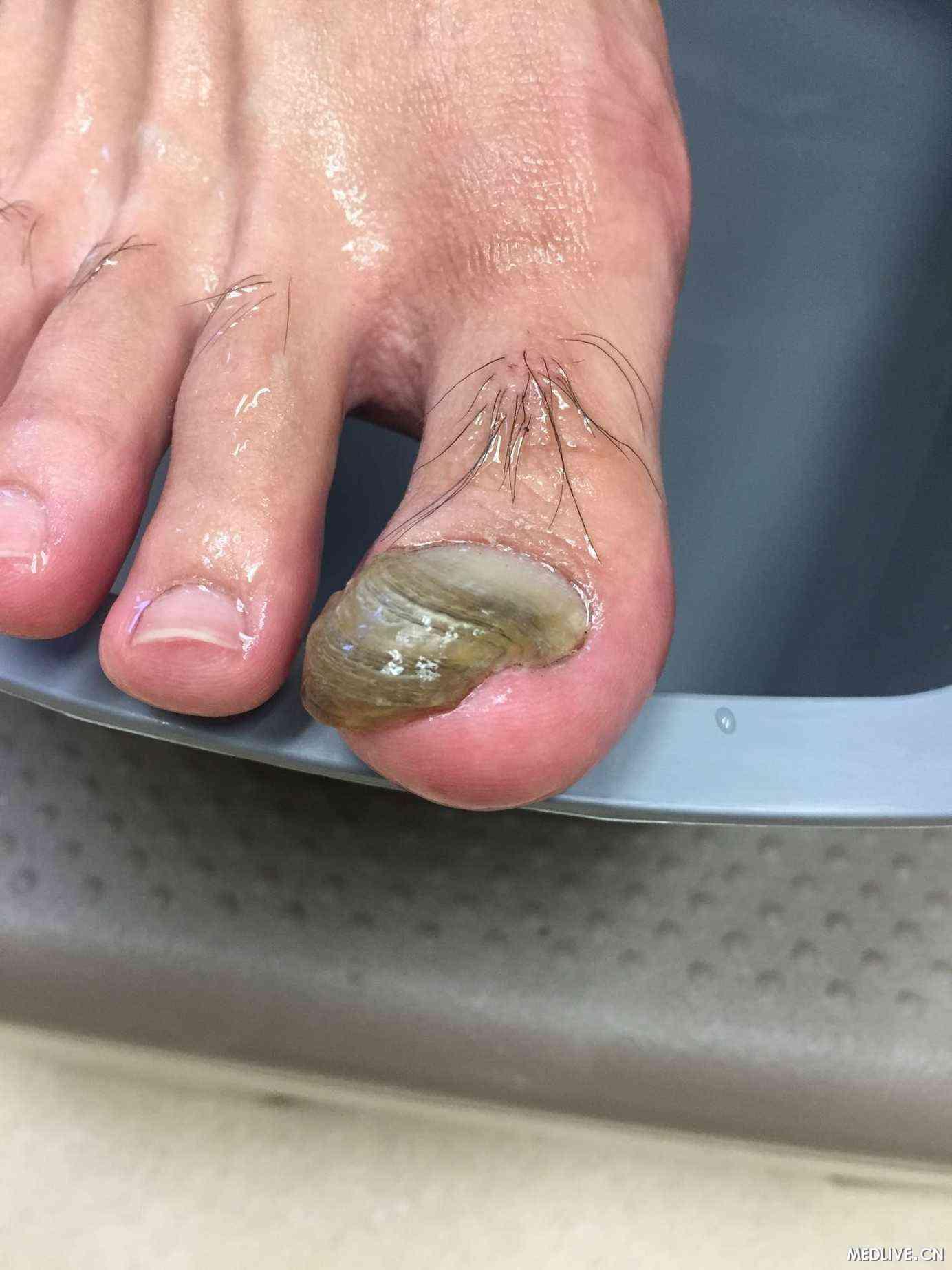 右脚大拇指畸形3年.打篮球的时候指甲